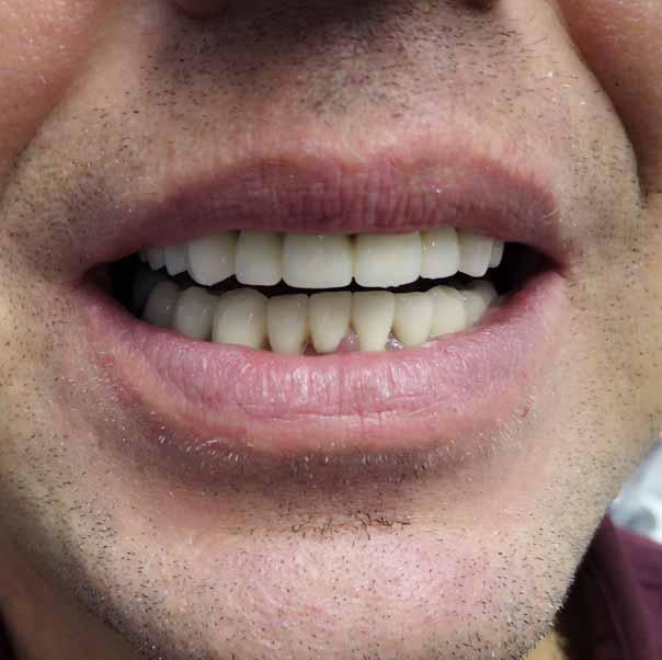 Восстановление зубов после