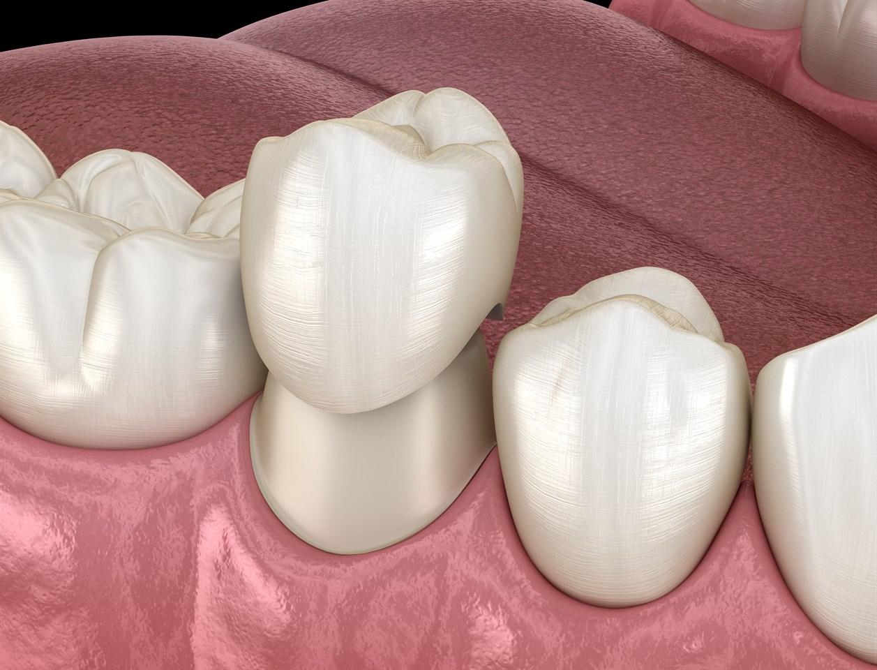 восстановление зубов коронкой