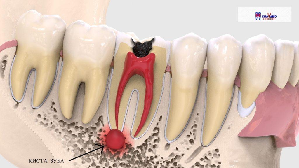 киста на десне после удаления зуба