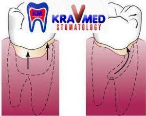 стоматология пластика десны