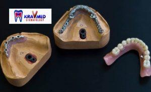 бюгельные протезы челюсть