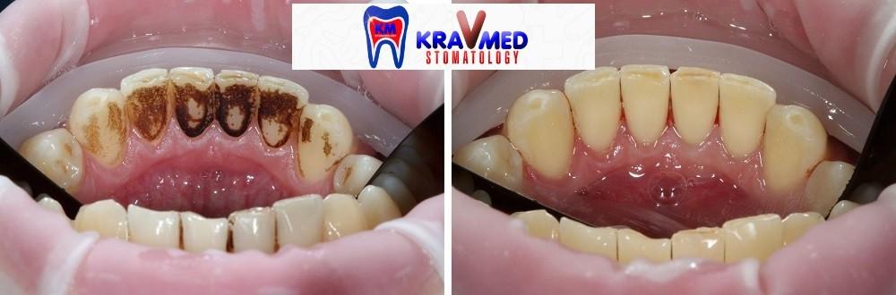 air flow зубы