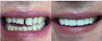 художественная реставрация зубов или виниры