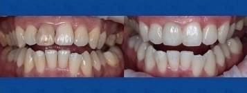 художественное моделирование и реставрация зубов