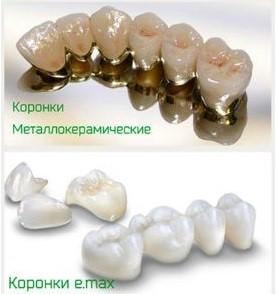 пресс керамика зубы