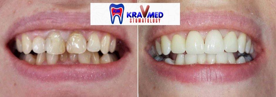 пресс керамические зубы