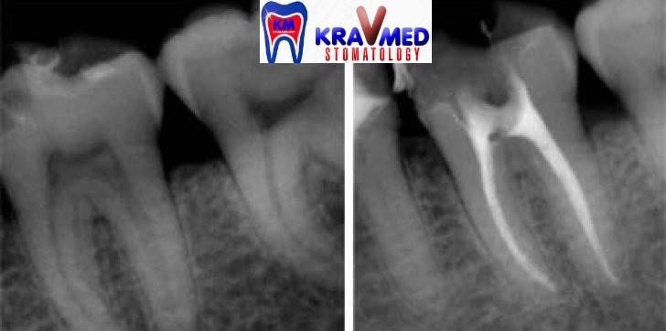 протокол лечения периодонтита постоянных зубов
