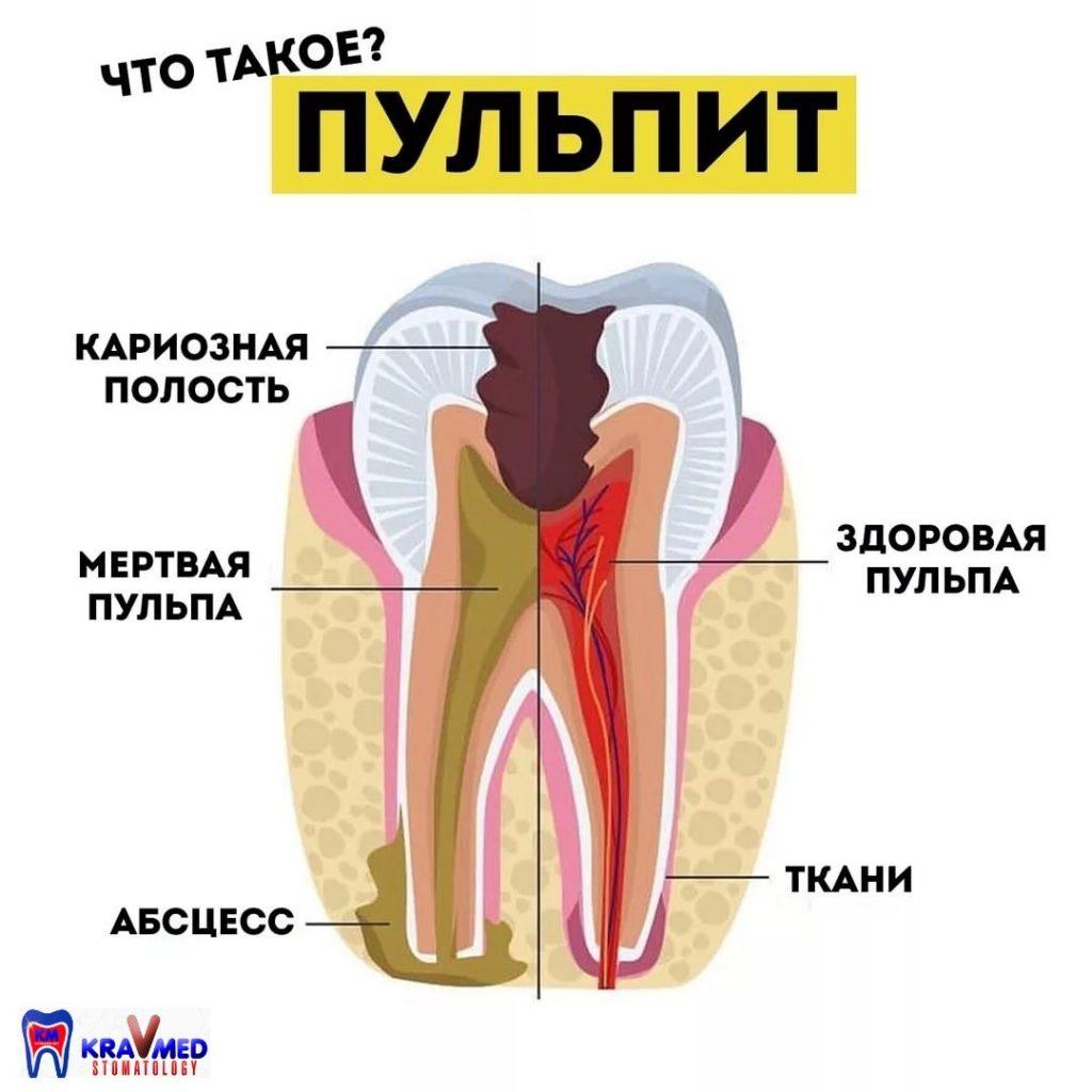 постоянные зубы с несформированными корнями лечение