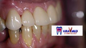 металлокерамическая коронка на зуб