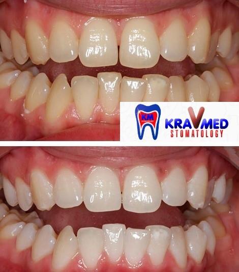 как отбелить эмаль зубов