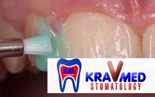 покрытие зубов фтор лаком