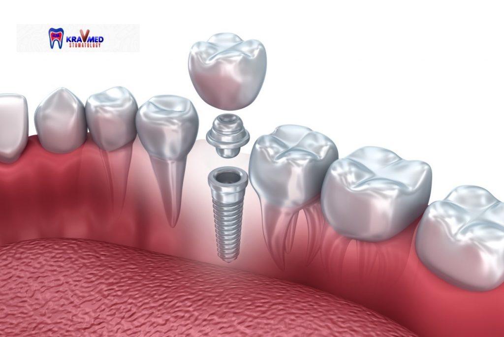 имплантация зубов в гомеле