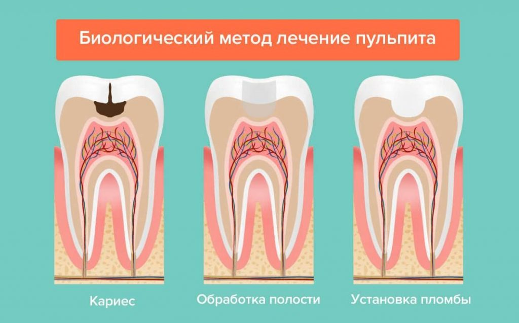 пульпит зуба лечение