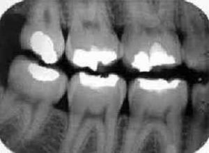 фото рентгена зуба мудрости