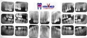 сделать рентген зуба
