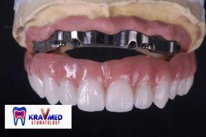 стоматология ортопедия протезирование зубов